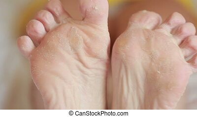female feet with skin peeling off foot scrub after the...