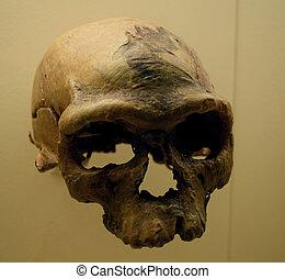Homo Sapiens - Partial skull of homo sapiens