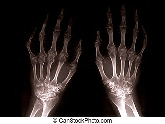 Xray hands - close up of xray hands with black background...
