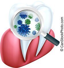 Tooth and Gum Bacteria - A medical dental illustration of a...