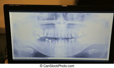 Computer screen shows a panoramic x-ray image of teeth and...