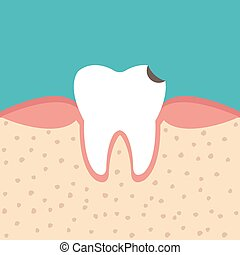 tooth sectional view tooth decay - illustration of tooth...