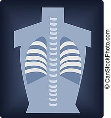illustration of a chest x ray