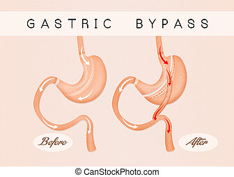 before and after gastric bypass - illustration of before and...
