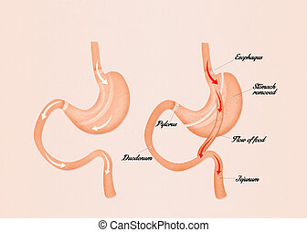 gastric bypass surgery - illustration of gastric bypass...