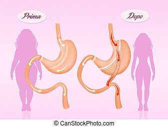 before and after gastric bypass surgery - illustration of...
