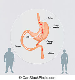 gastric bypass - illustration of gastric bypass