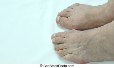 Onychomycosis. Fungus infection on nails