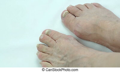 Fungus infection on nails of person's foot - Onychomycosis....