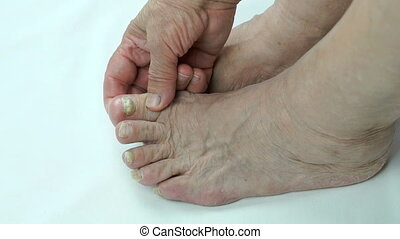 Fungal infection on nails of foot