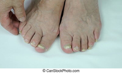 Fungus infection on nails of persons foot - Onychomycosis...