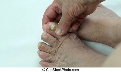Fungal infection on nails of person's foot - Serious fungal...
