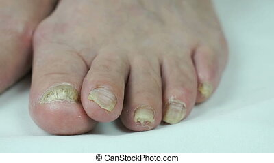Fungus infection nails of persons foot close-up
