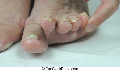 Onychomycosis Fungal infection of toenails of womans feet...