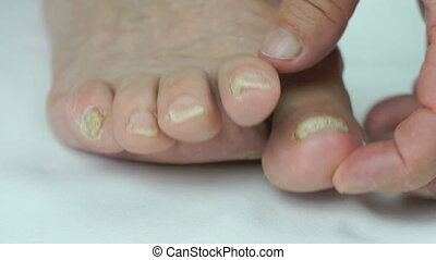 Womans feet has fungal infections of toenails - Old sick...