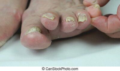 Onychomycosis. Fungal infection of nails of feet -...