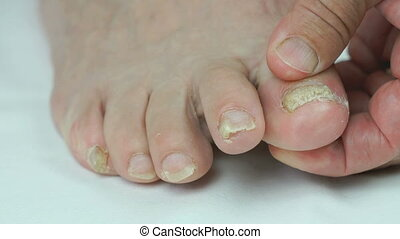 Woman's feet with fungal infections of toenails - Aged sick...