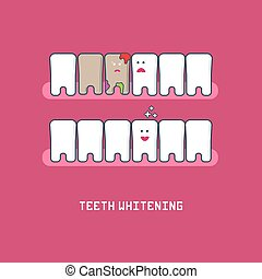 Teeth before and after bleaching