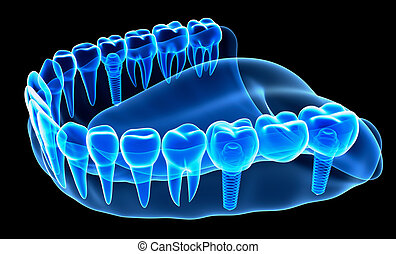 X-ray view of denture with implant