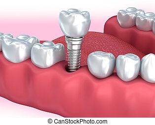 Tooth human implant, Medically accurate 3D illustration