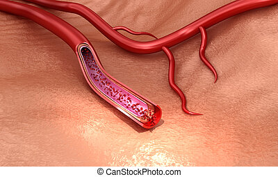Blood vessel sliced macro with erythrocytes , Medically accurate 3D illustration