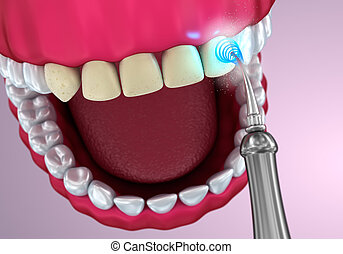 Teeth whitening , Medically accurate 3D illustration
