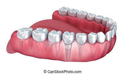 Lower teeth and dental implant transparent render isolated...