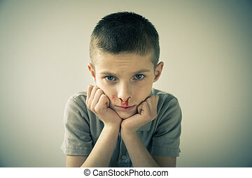 Boy with Bloody Nose Resting Head in Hands - Waist Up...
