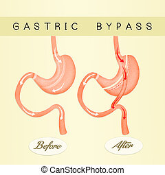 illustration of gastric bypass scheme