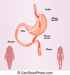 gastric bypass to reduce stomach - illustration of gastric...