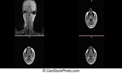 Magnetic resonance imaging neck of the brain sclerosis...