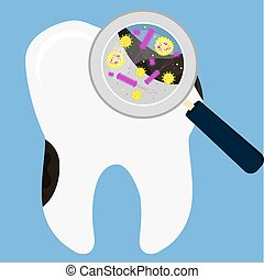 Tooth decay magnified - Rotten tooth decay magnified by a...