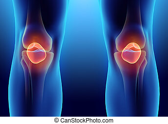 3D illustration of Patella, medical concept. - 3D...