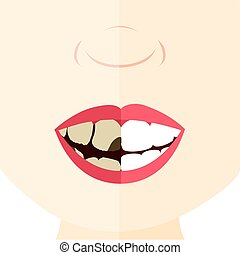 Healthy teeth and dirty - Comparison between healthy and...