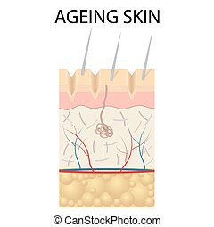 Old skin anatomy. - Old skin anatomy characterized by...