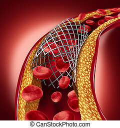 Stent Implant Concept - Stent implant concept as a heart...