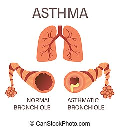 Normal and asthmatic bronchioles on white background. Asthma...