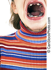 Girl with teeth problem - close up
