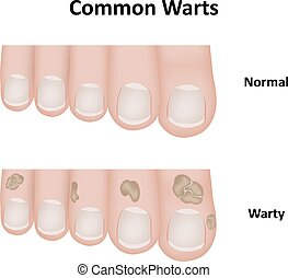 Common Warts on Toes