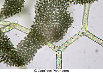 Hydrodictyon reticulatum and group of cyanobacteria Super...