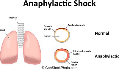 Anaphylactic Shock Illustration Lungs Disease Disorder...