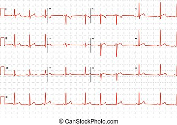 Typical human electrocardiogram, red graph with marks on...