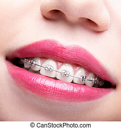 Closeup of woman open smiling mouth with brackets - Closeup...