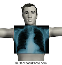 Man having a chest x-ray - 3d rendered man having a chest...