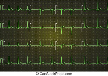 Typical human electrocardiogram, bright green graph on dark...