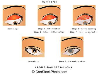 Trachoma of the eye. Progression of trachoma. Trachoma, an...