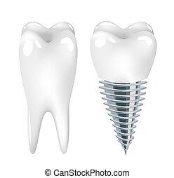 Dental implant dentistry, tooth vector art illustration.