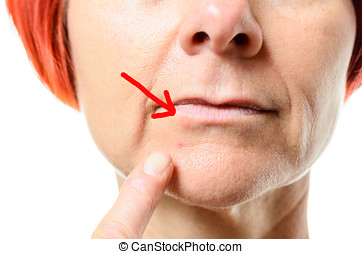 Woman pointing to blemish on chin - Close up view on face of...