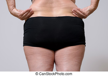 Rear View of a Woman in Underwear Holds Fat Belly - Close up...