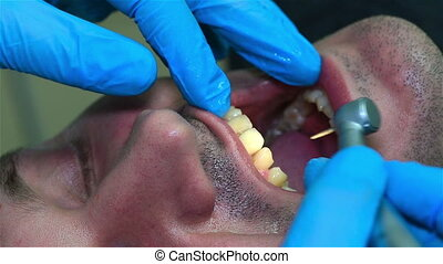 Dentist With Dental Drill Drilling Tooth. Close Up